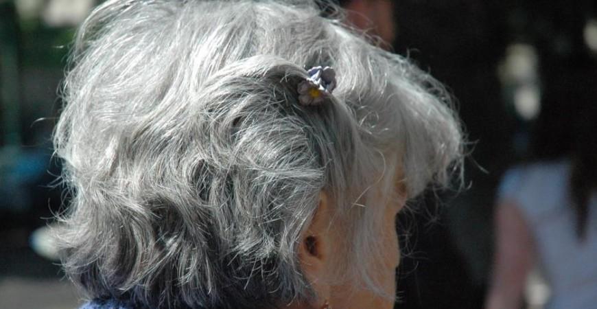 الشيب المبكر قد يعود أحيانا للإصابة بأمراض كالغدة الدرقية والمناعة الذاتية (بيكسابي)