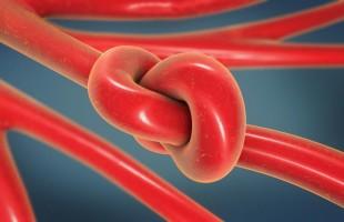 جلطات الدم قد لا تلاحظها.. لكن هذه أعراضها وعواقبها!