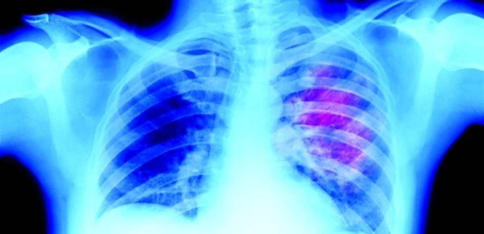 """""""غوغل"""" تتفوق على الأطباء بالكشف عن سرطان الرئة"""