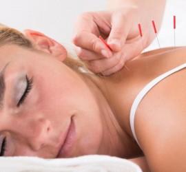 الوخز بالإبر يساعد في التخلص من آلام الظهر العنيدة