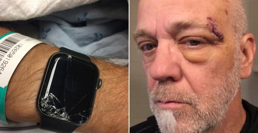 بوب سقط من على دراجته مما أدى لفقدانه الوعي وتحطم الساعة ولكن ليس قبل أن ترسل إشارة استغاثة (مواقع التواصل)